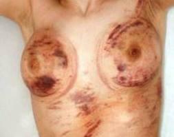 Donna violentata da un gruppo di 5 ragazze