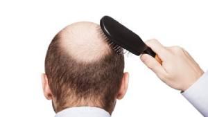 perdita di capelli alla prostata